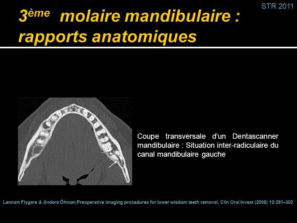 3ème molaire mandibulaire : rapports anatomiques