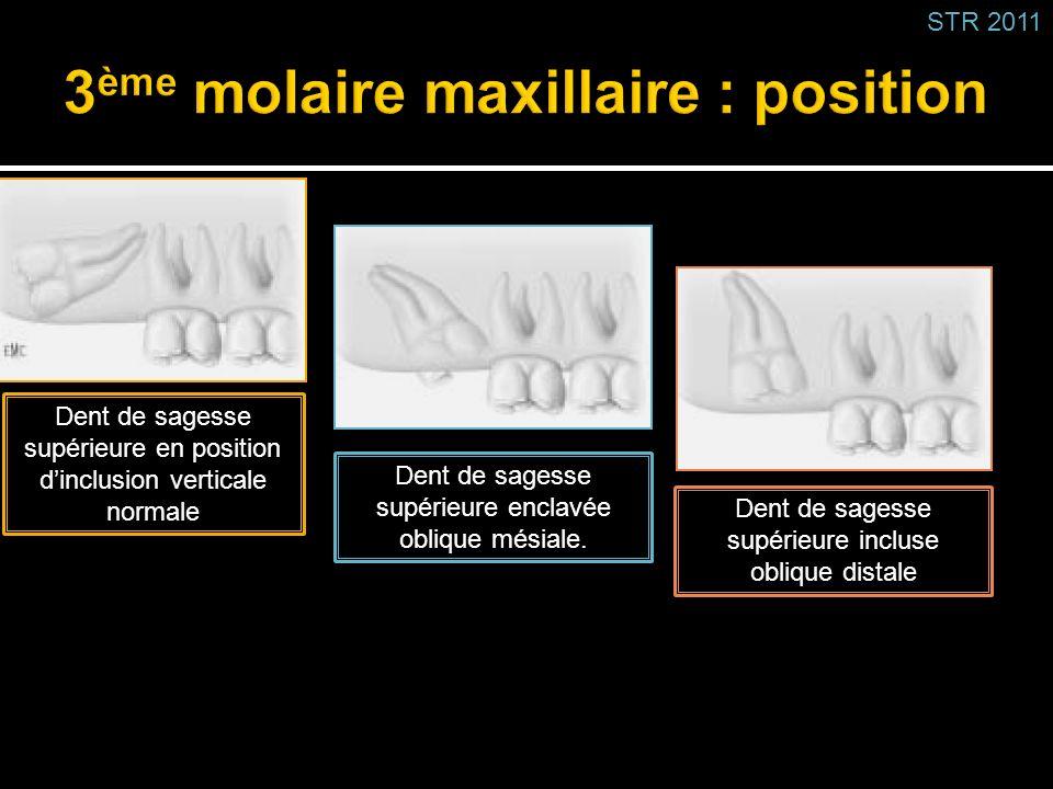 3ème molaire maxillaire : position