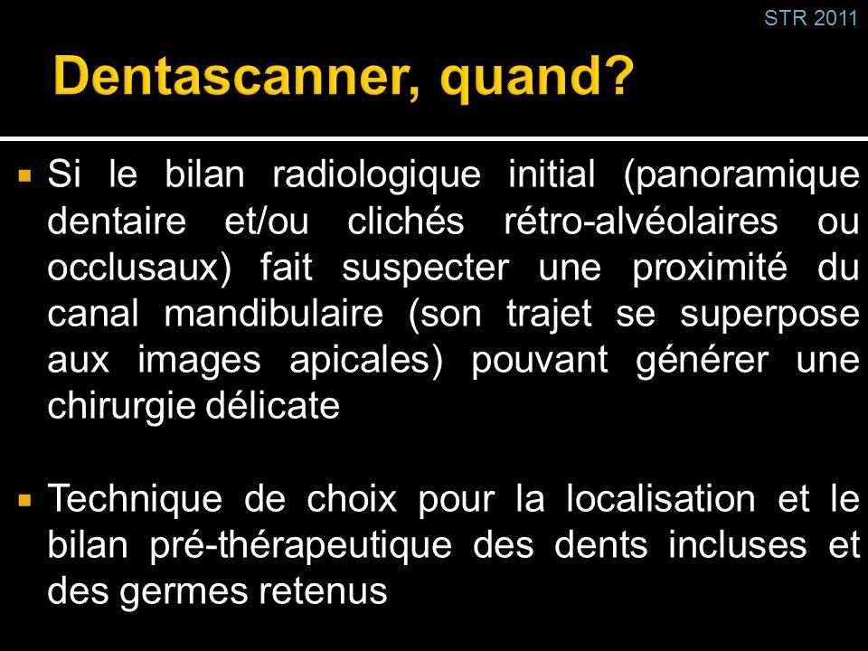 STR 2011 Dentascanner, quand
