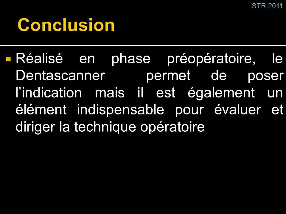 STR 2011 Conclusion.