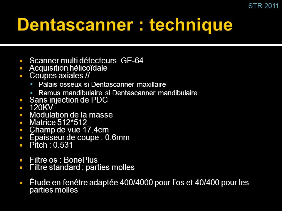 Dentascanner : technique