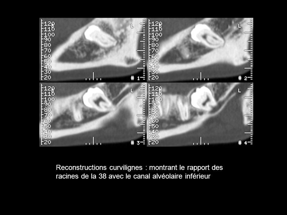 Reconstructions curvilignes : montrant le rapport des racines de la 38 avec le canal alvéolaire inférieur