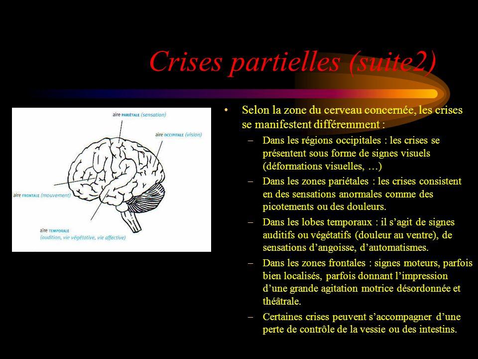 Crises partielles (suite2)