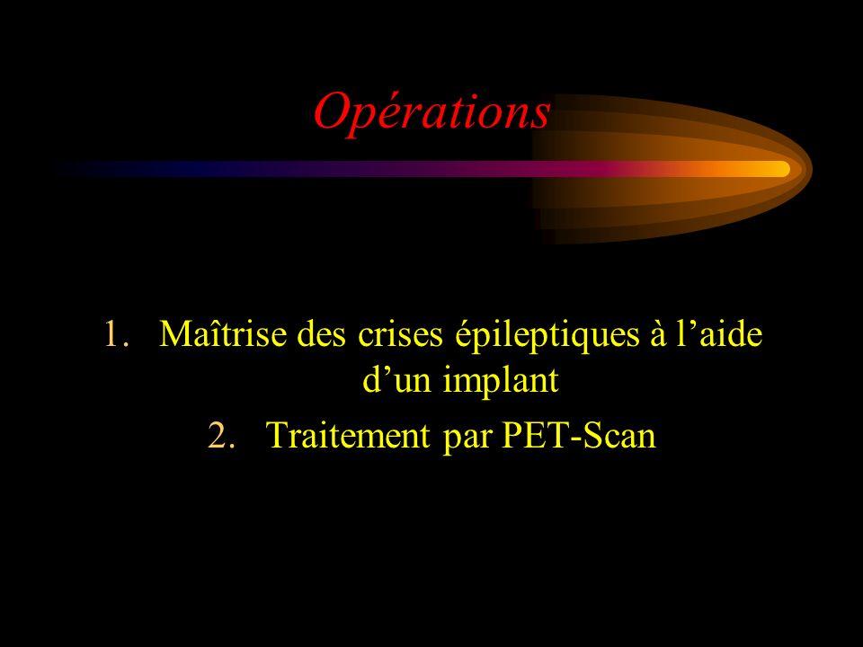 Opérations Maîtrise des crises épileptiques à l'aide d'un implant