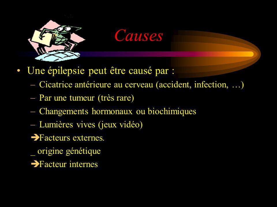 Causes Une épilepsie peut être causé par :