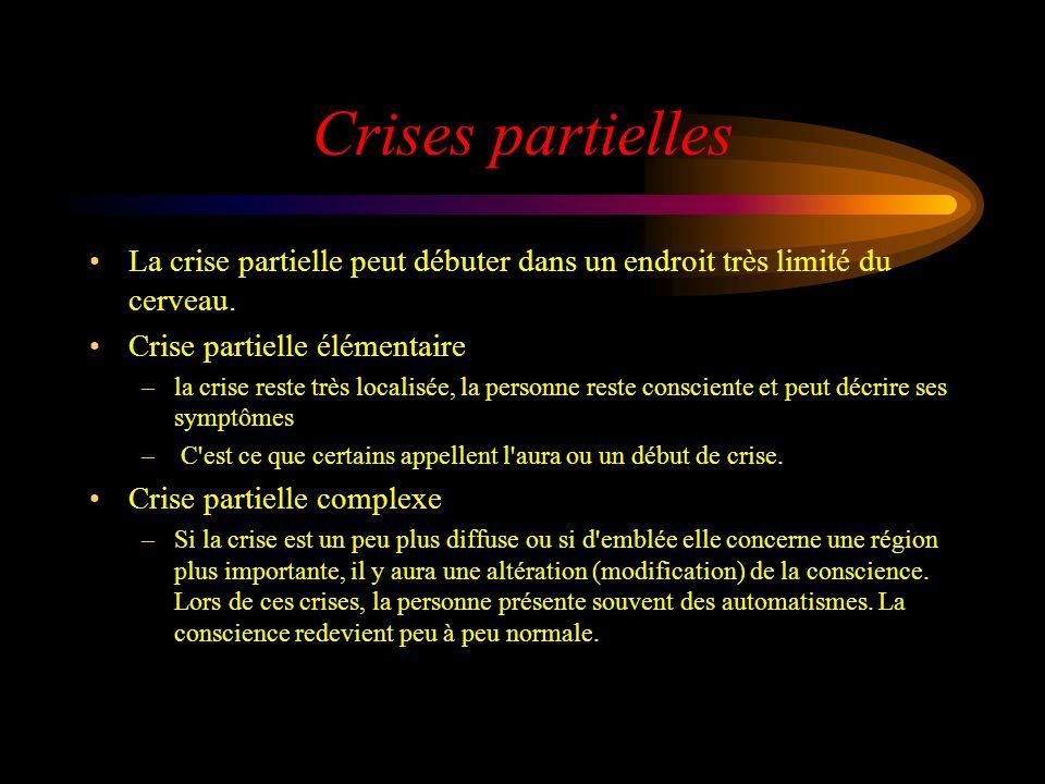 Crises partielles La crise partielle peut débuter dans un endroit très limité du cerveau. Crise partielle élémentaire.
