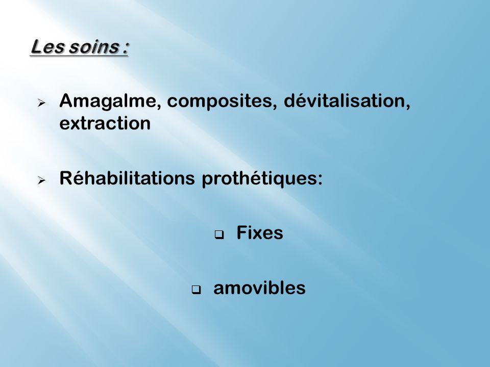 Les soins : Amagalme, composites, dévitalisation, extraction. Réhabilitations prothétiques: Fixes.