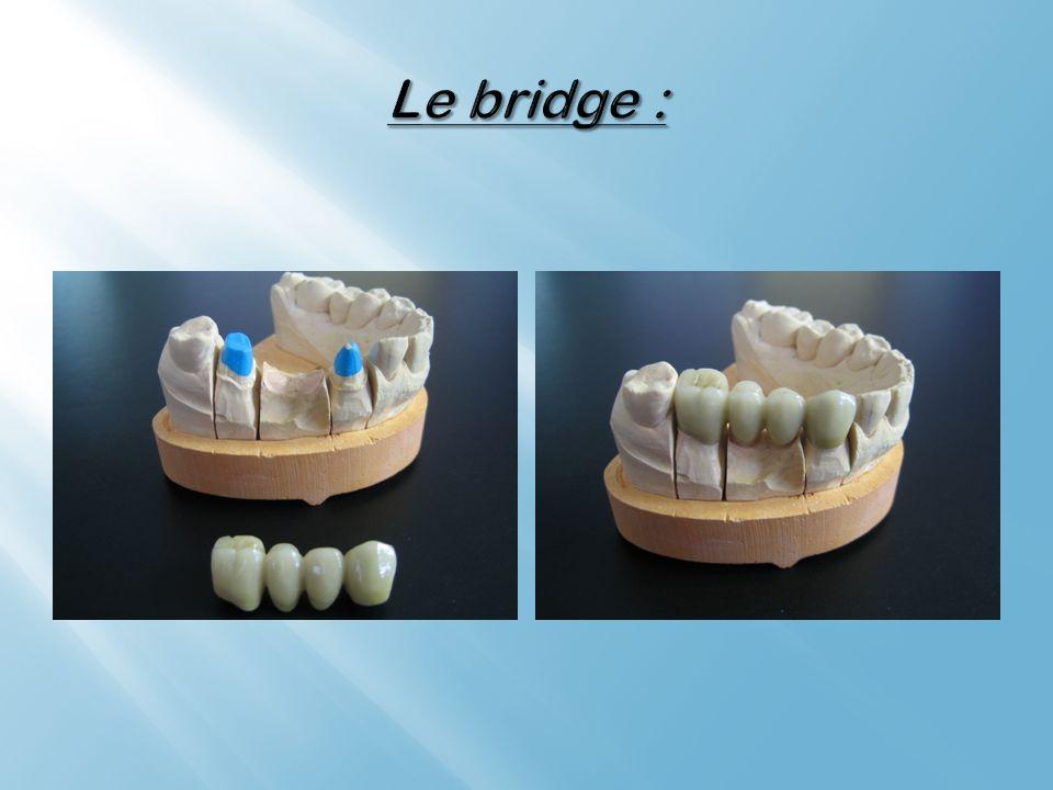 Le bridge :