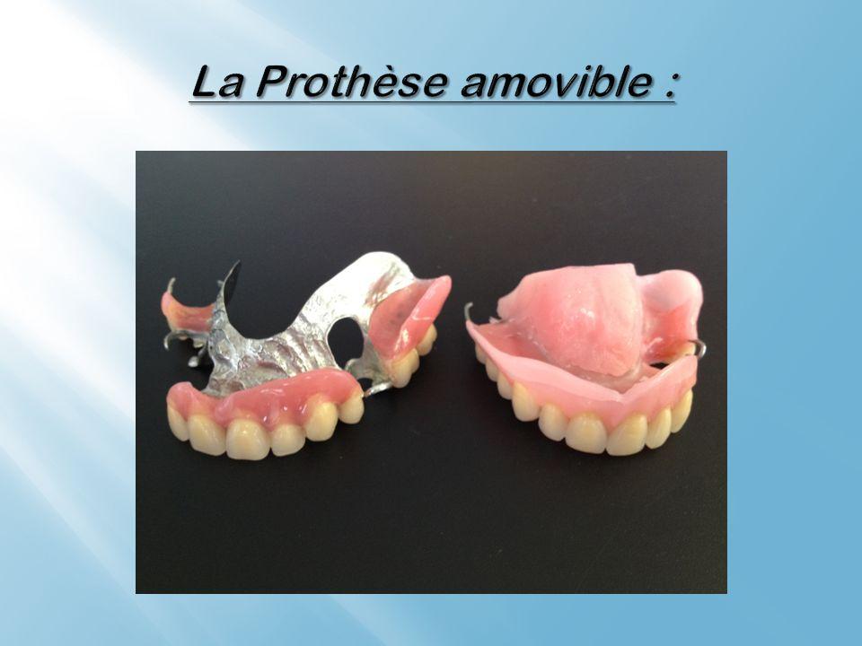 La Prothèse amovible :