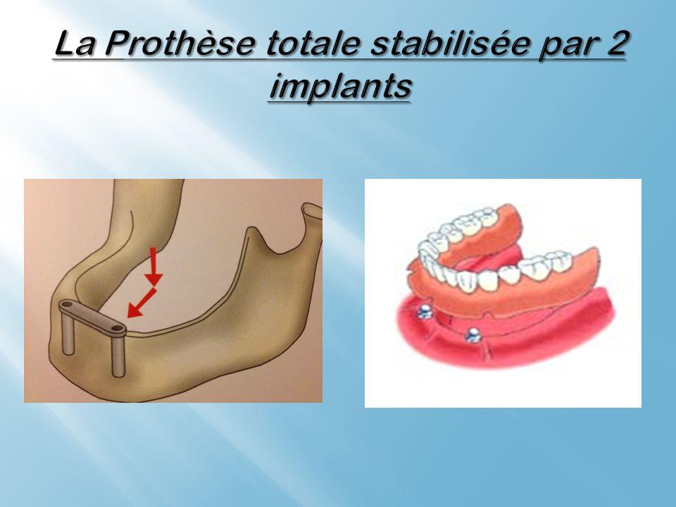 La Prothèse totale stabilisée par 2 implants