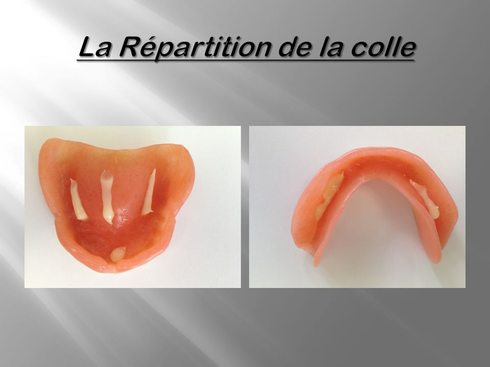 La Répartition de la colle