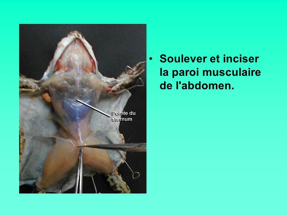 Soulever et inciser la paroi musculaire de l abdomen.