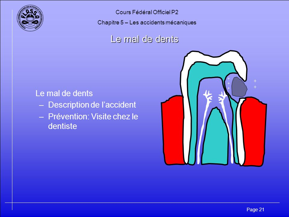 Le mal de dents Le mal de dents Description de l'accident