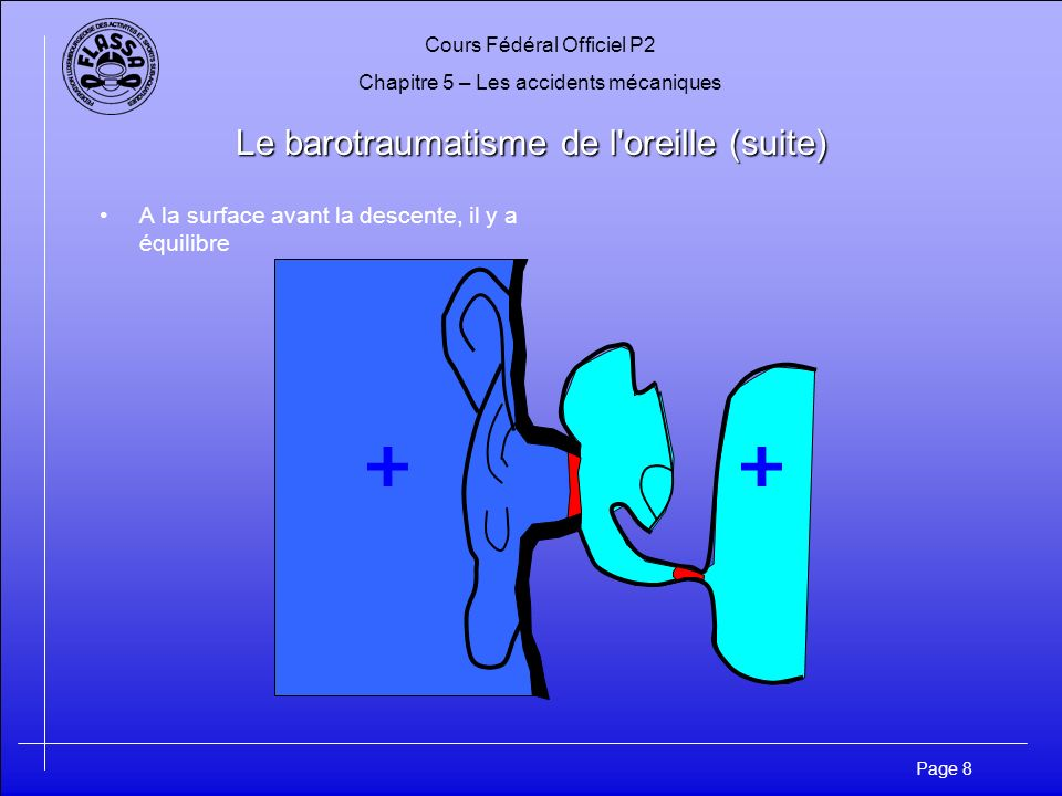 Le barotraumatisme de l oreille (suite)