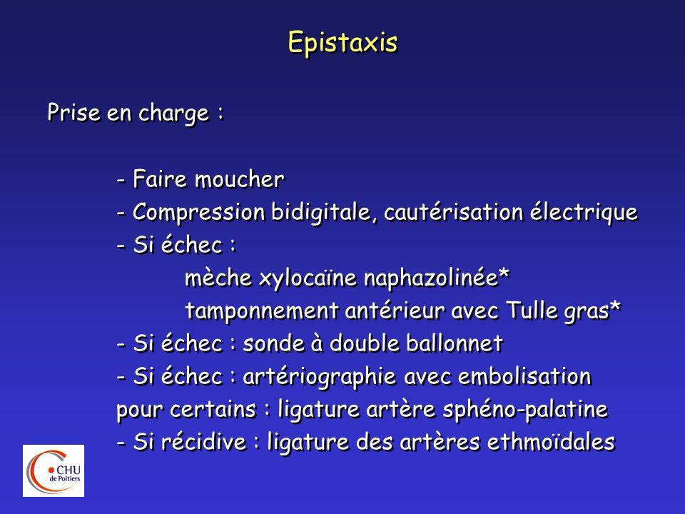 Epistaxis Prise en charge : - Faire moucher
