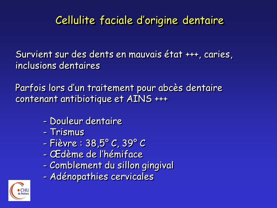 Cellulite faciale d'origine dentaire