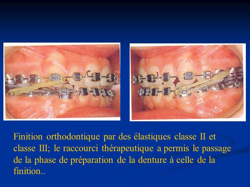 Finition orthodontique par des élastiques classe II et classe III; le raccourci thérapeutique a permis le passage de la phase de préparation de la denture à celle de la finition..