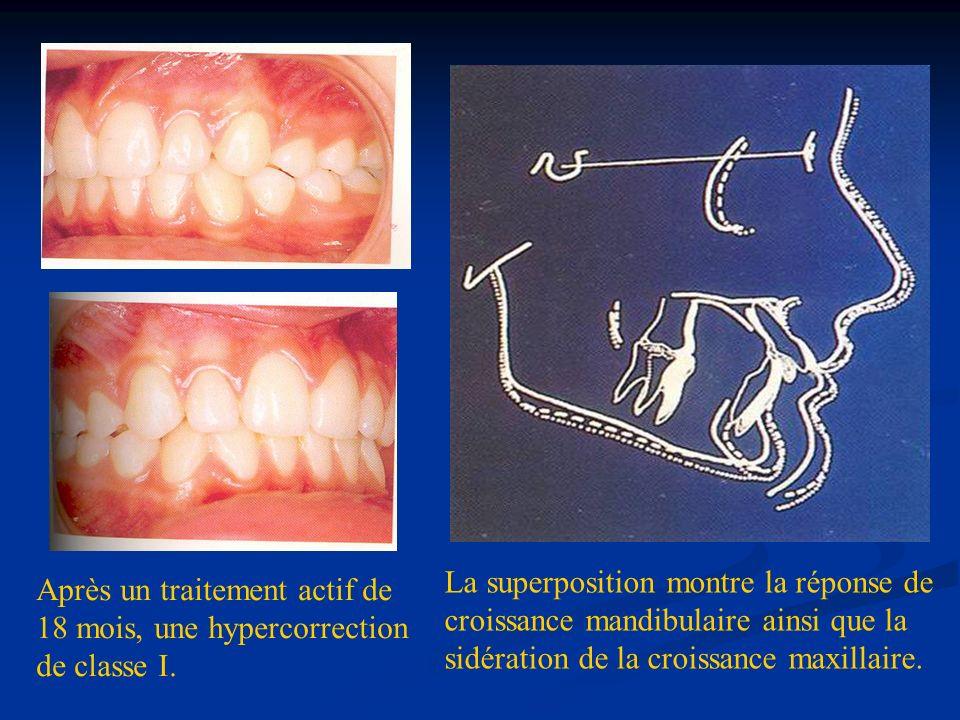La superposition montre la réponse de croissance mandibulaire ainsi que la sidération de la croissance maxillaire.