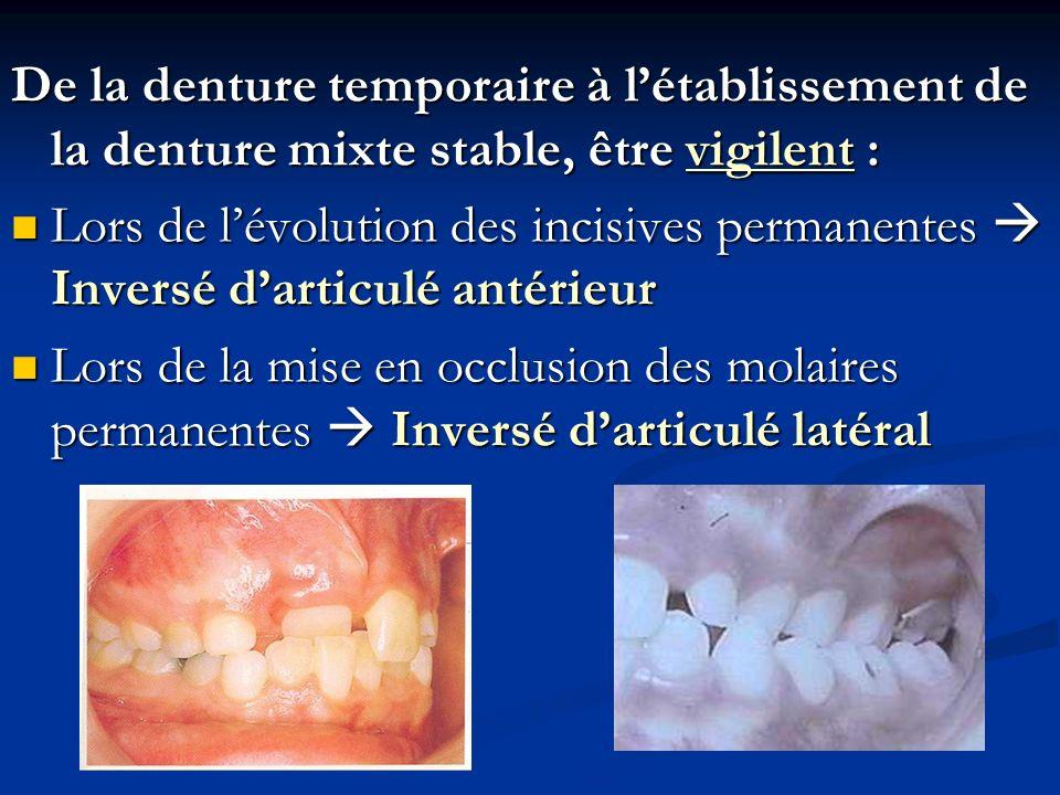 De la denture temporaire à l'établissement de la denture mixte stable, être vigilent :