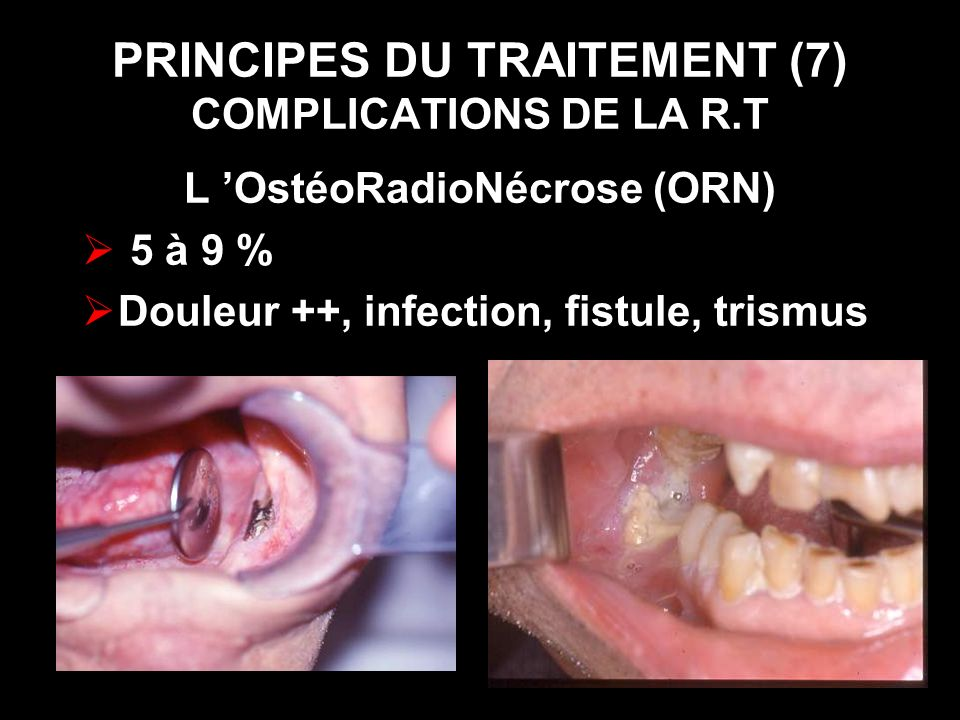 PRINCIPES DU TRAITEMENT (7) COMPLICATIONS DE LA R.T