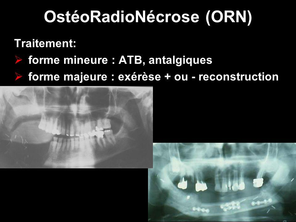 OstéoRadioNécrose (ORN)