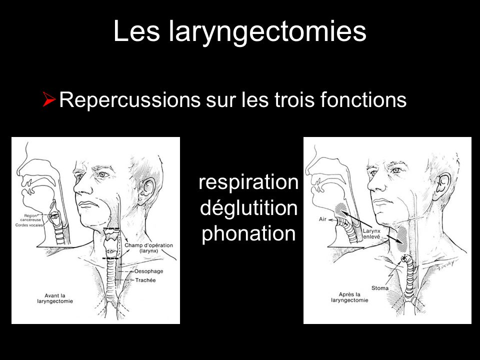 respiration déglutition phonation