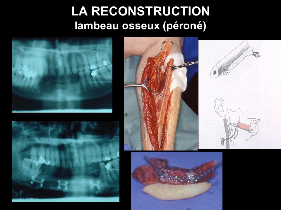 LA RECONSTRUCTION lambeau osseux (péroné)