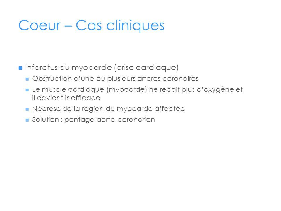 Coeur – Cas cliniques Infarctus du myocarde (crise cardiaque)