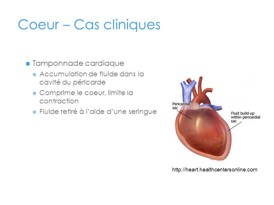Coeur – Cas cliniques Tamponnade cardiaque