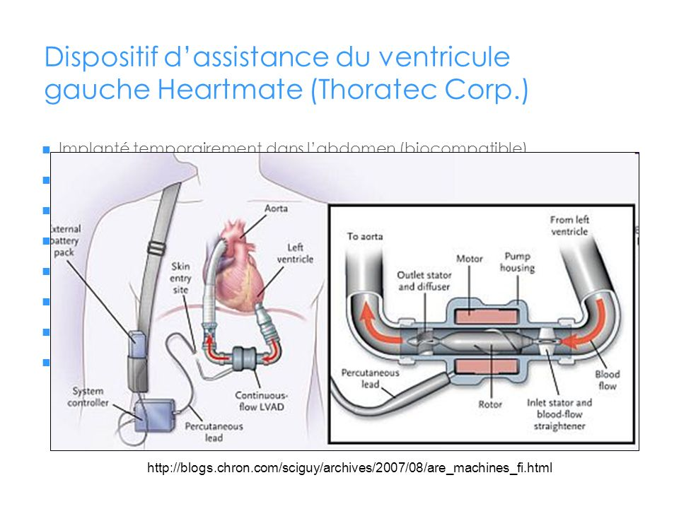 Dispositif d'assistance du ventricule gauche Heartmate (Thoratec Corp