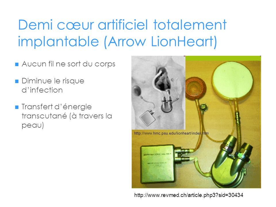 Demi cœur artificiel totalement implantable (Arrow LionHeart)
