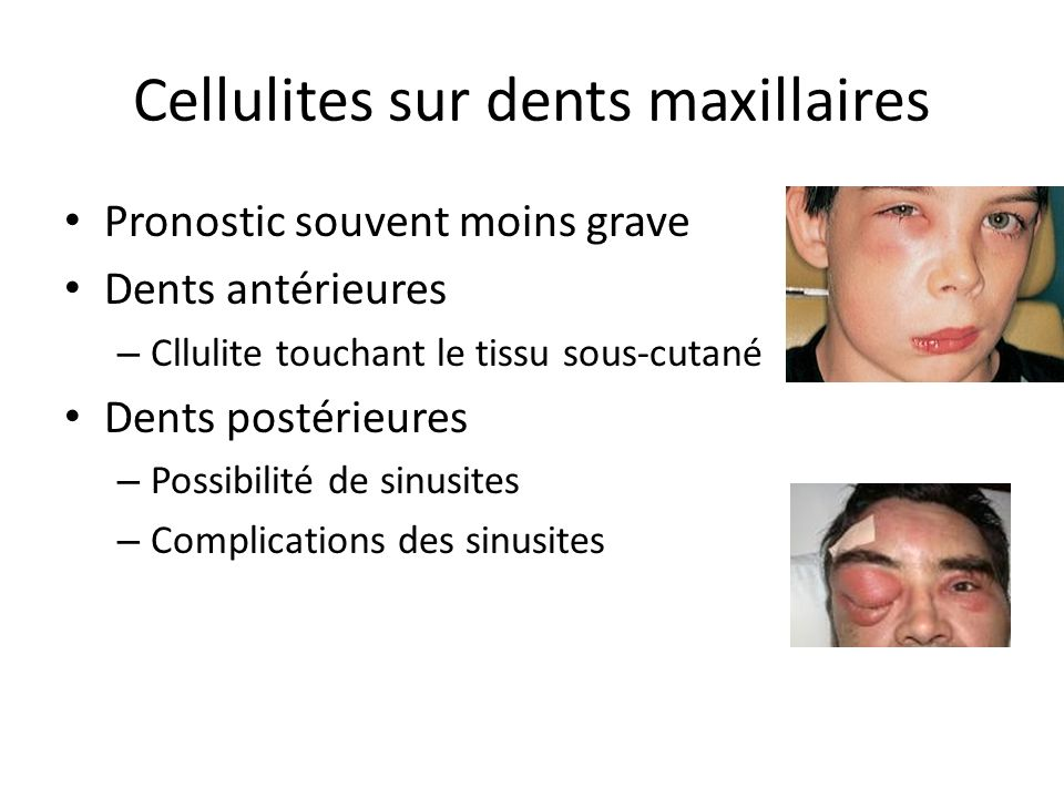 Cellulites sur dents maxillaires