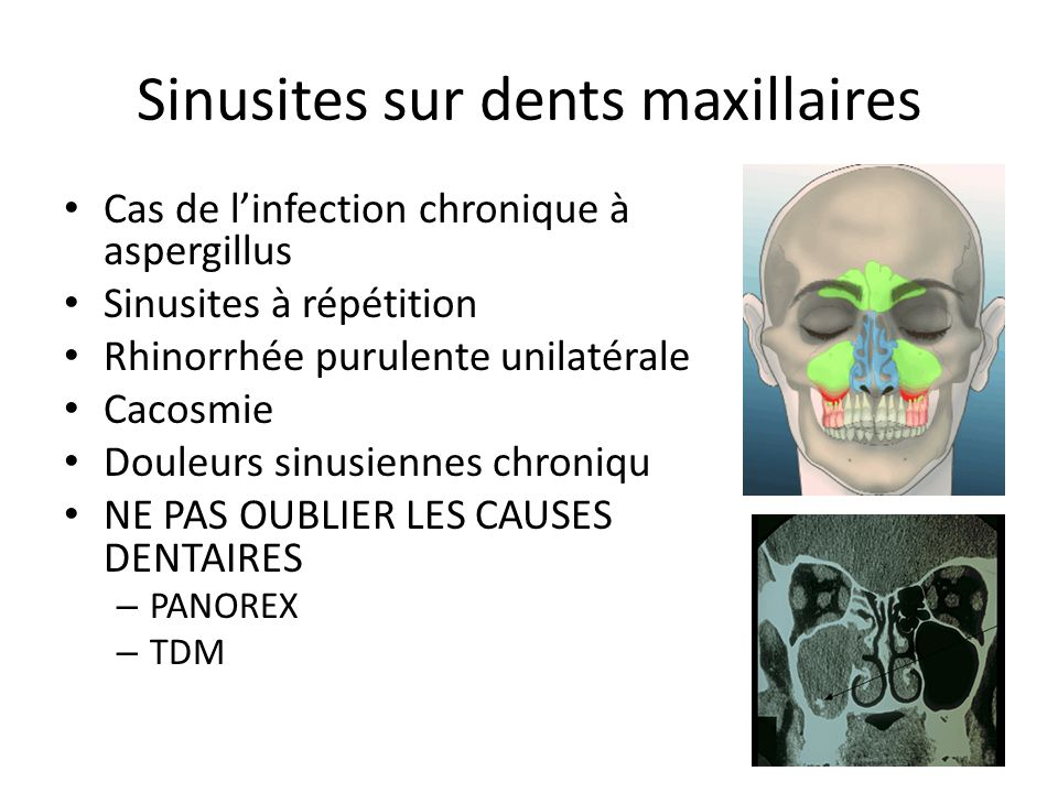 Sinusites sur dents maxillaires
