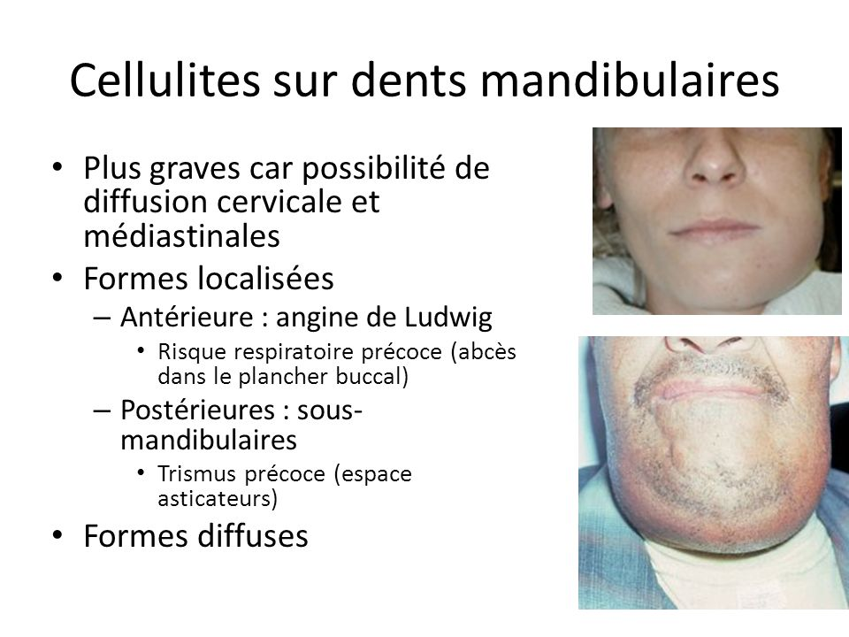 Cellulites sur dents mandibulaires