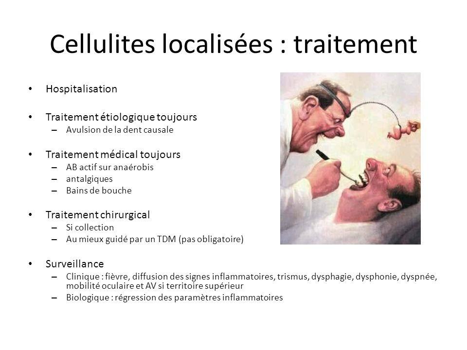Cellulites localisées : traitement