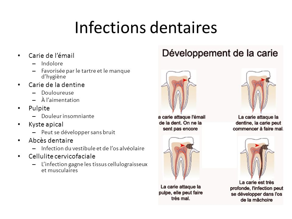 Infections dentaires Carie de l'émail Carie de la dentine Pulpite