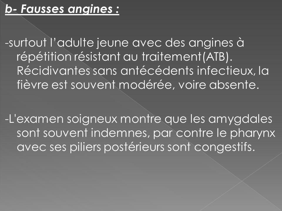 b- Fausses angines : -surtout l'adulte jeune avec des angines à répétition résistant au traitement(ATB).
