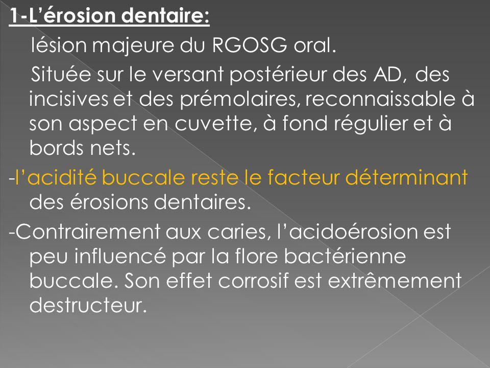 1-L'érosion dentaire: lésion majeure du RGOSG oral.