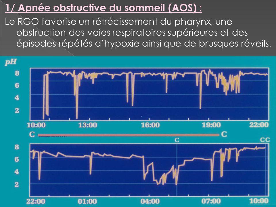 1/ Apnée obstructive du sommeil (AOS) :