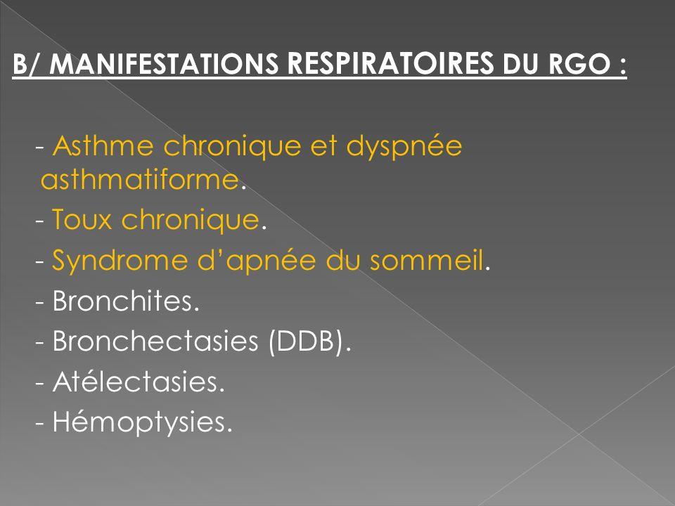 B/ MANIFESTATIONS RESPIRATOIRES DU RGO : - Asthme chronique et dyspnée asthmatiforme.