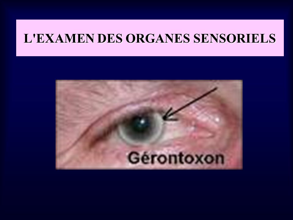 L EXAMEN DES ORGANES SENSORIELS