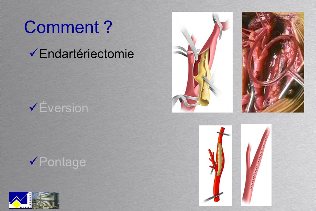 Comment Endartériectomie Éversion Pontage
