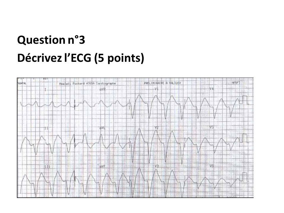 Question n°3 Décrivez l'ECG (5 points)