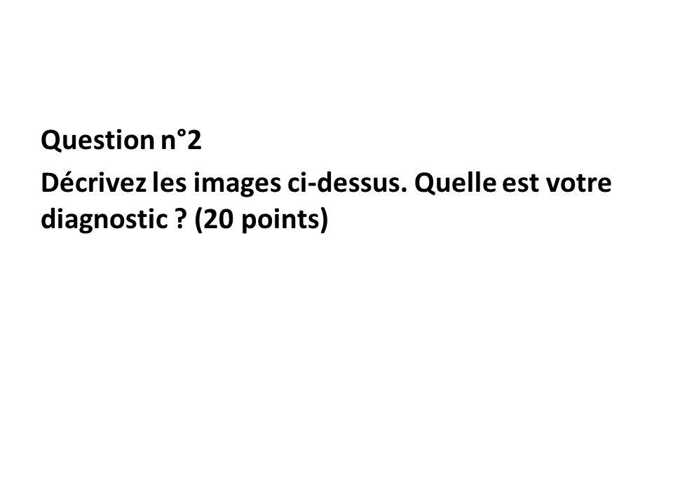Question n°2 Décrivez les images ci-dessus. Quelle est votre diagnostic (20 points)