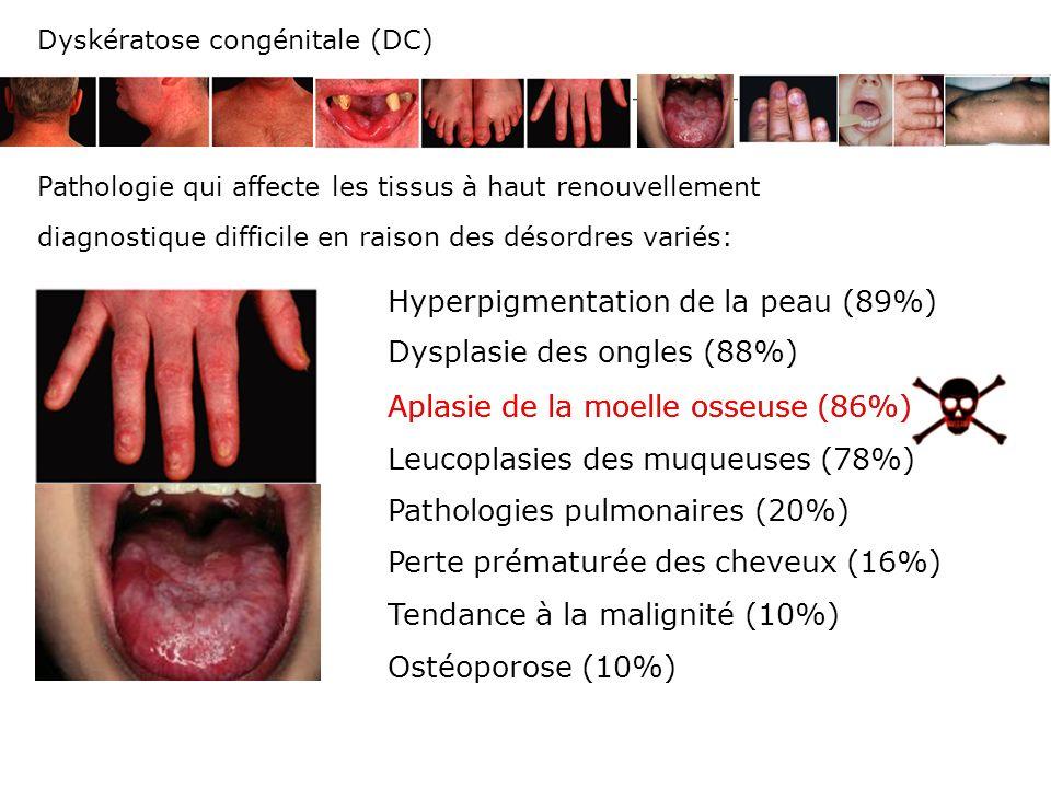Hyperpigmentation de la peau (89%)