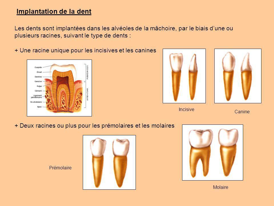 Implantation de la dent