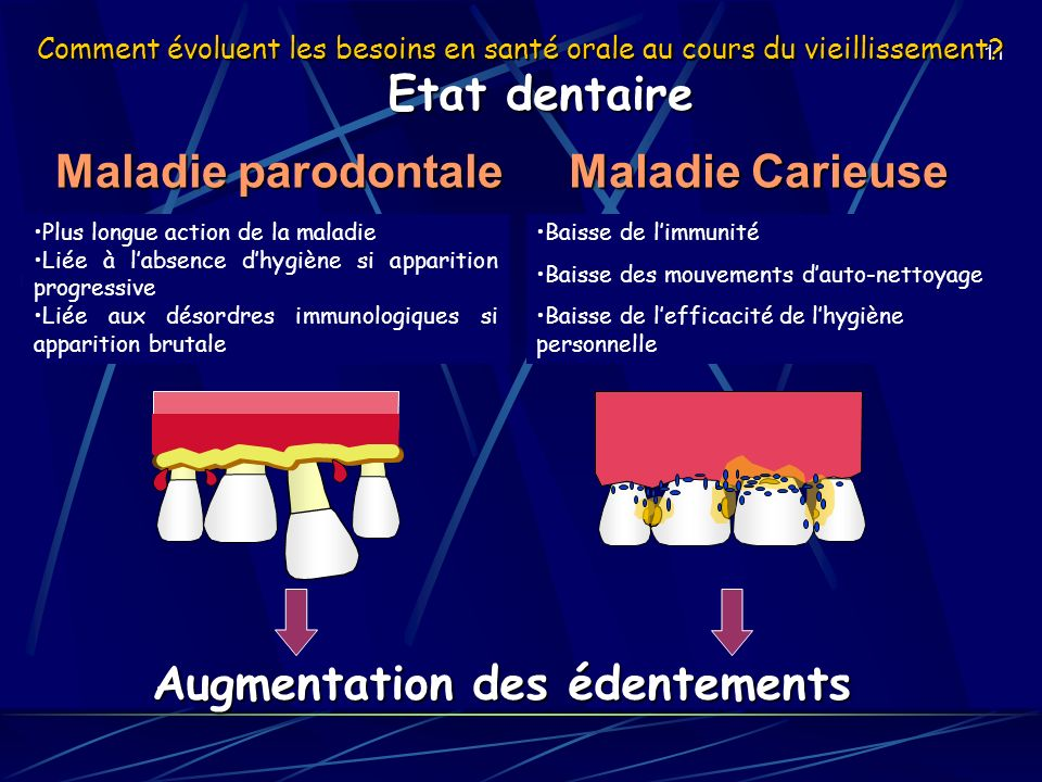 Augmentation des édentements