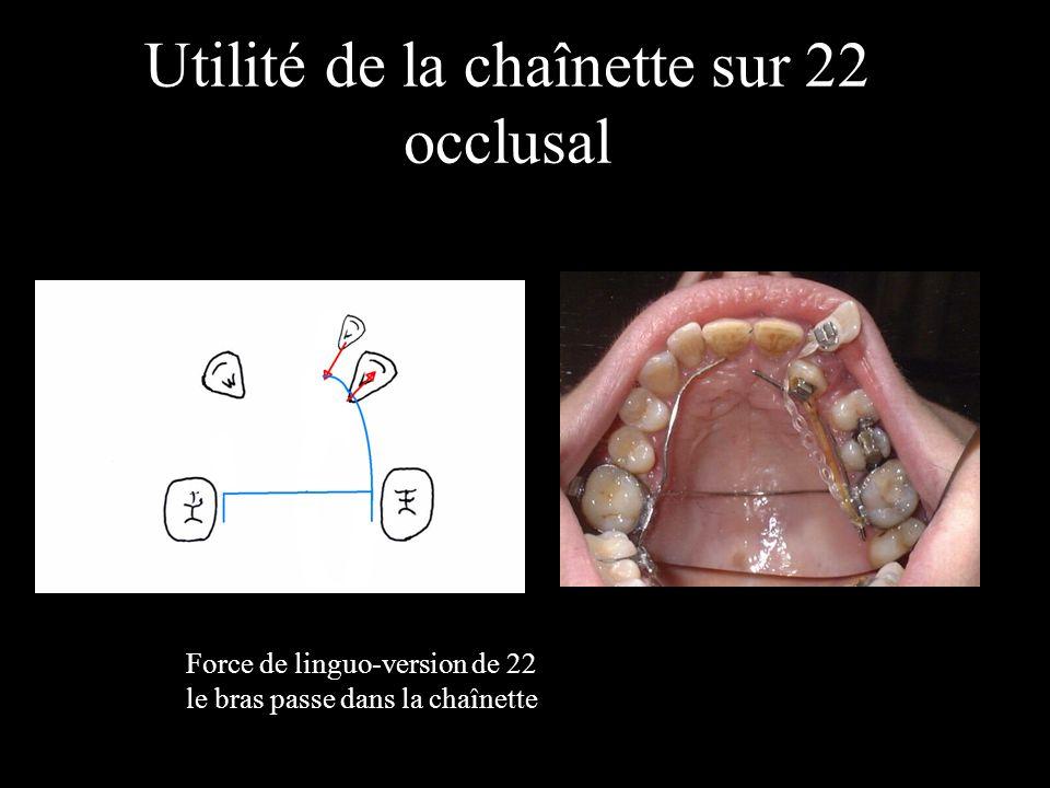 Utilité de la chaînette sur 22 occlusal