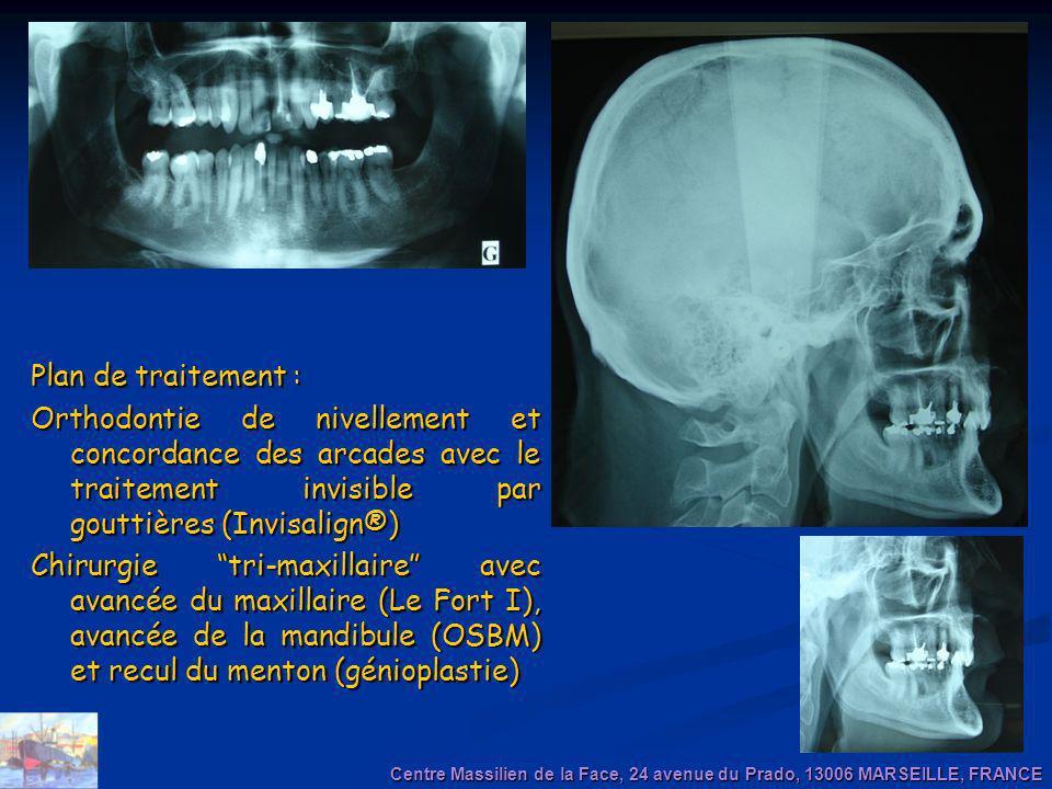Plan de traitement : Orthodontie de nivellement et concordance des arcades avec le traitement invisible par gouttières (Invisalign®)