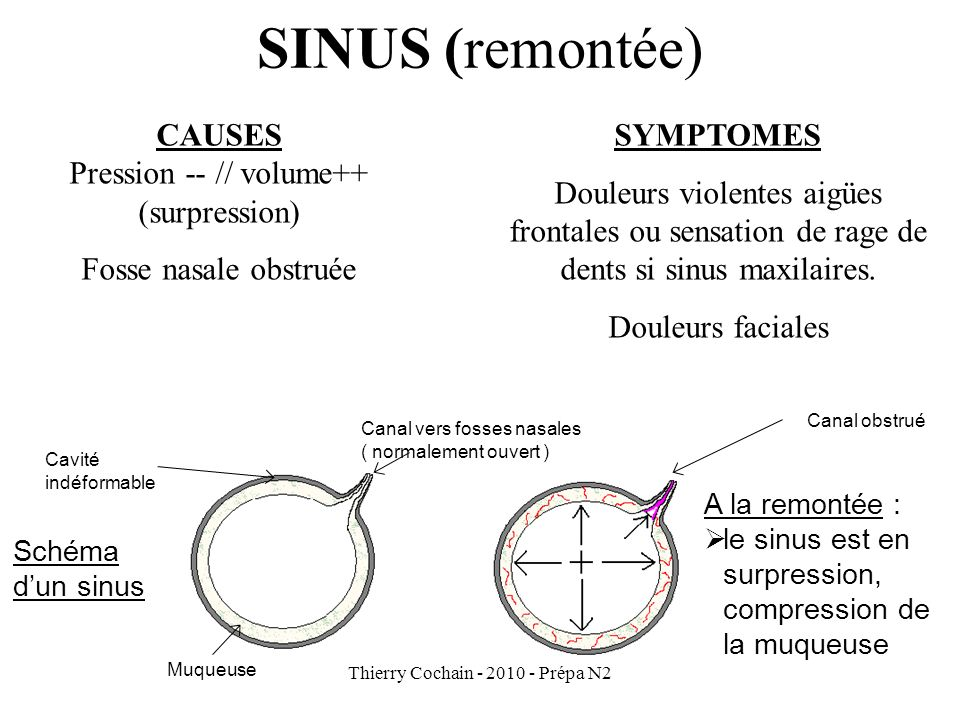 SINUS (remontée) CAUSES Pression -- // volume++ (surpression)